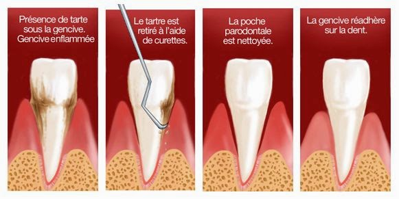 biodental-surfacage