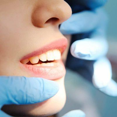 sourire2-biodental-dentiste-paris