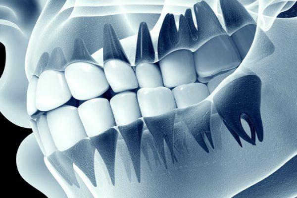 douleur-machoire-biodental-traitement-paris-dentiste-saint-lazare