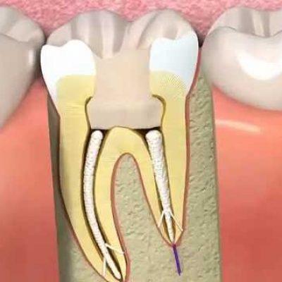endodontie-devitalisation-dents-biodental-dentiste-paris