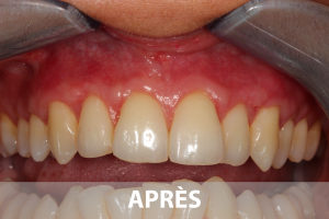 soin-gencives-biodental-cabinet-dentiste-saint-lazare