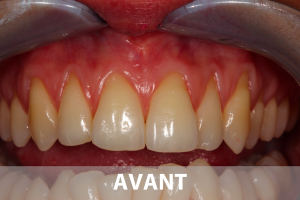 soin-gencives-biodental-cabinet-dentiste-saint-lazare-gingivite